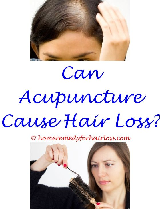 11 best Causes Of Female Hair Loss images on Pinterest | Hair ...