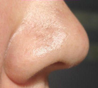 how to clear blackheads on nose fast