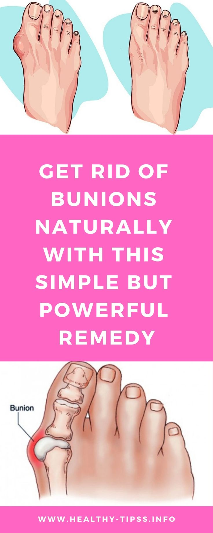 Get rid of bunions naturally with this simple but powerful