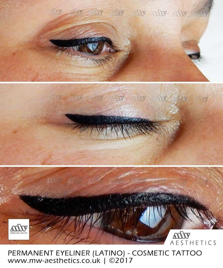 permanent eyeliner MW Aesthetics London Permanent