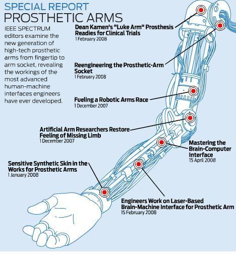 IEEE Spectrum Special Report on Prosthetic Arms | Singularity Hub