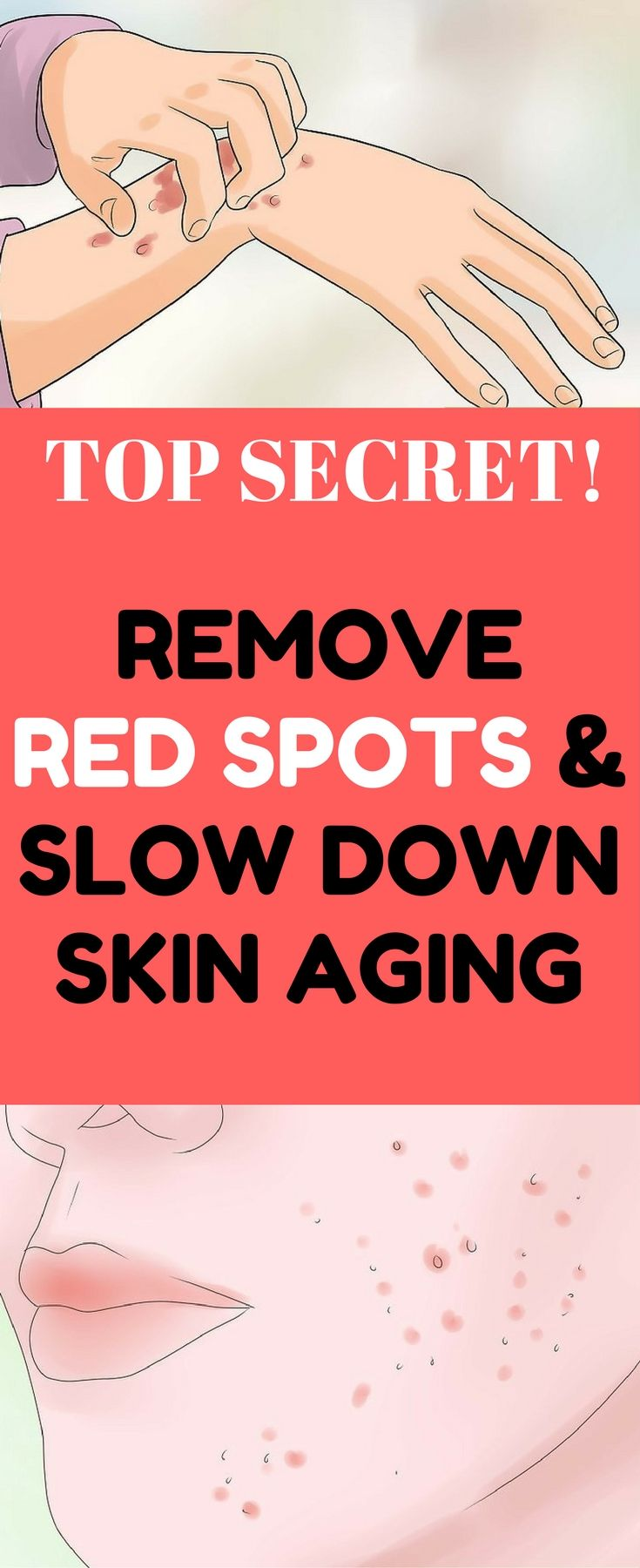 Skin red spots removal and anti aging secret now revealed.