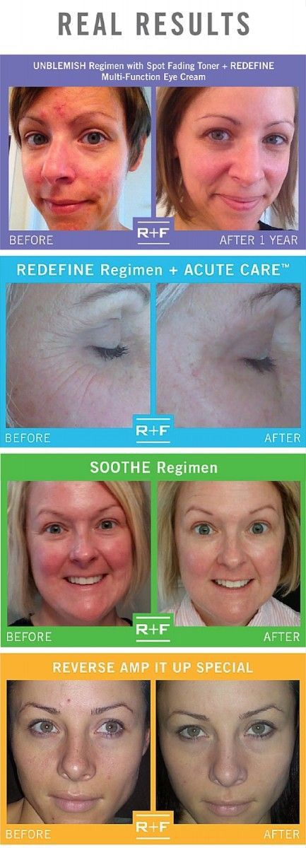 Rodan + Fields Before and after skincare product pics!