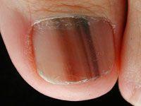 Melanoma of nail unit; subungal melanoma