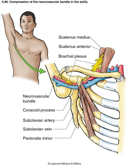 Thoracic Outlet Syndrome (TOS) - compression of the neurovascular bundle causing pain or altered sensation into the arm. A few causes of TOS are tight scaleens, tight pec minor, extra cervical rib,  pancoast tumor, physical trauma from a vehicle accident, repetitive strain from occupation or sports.