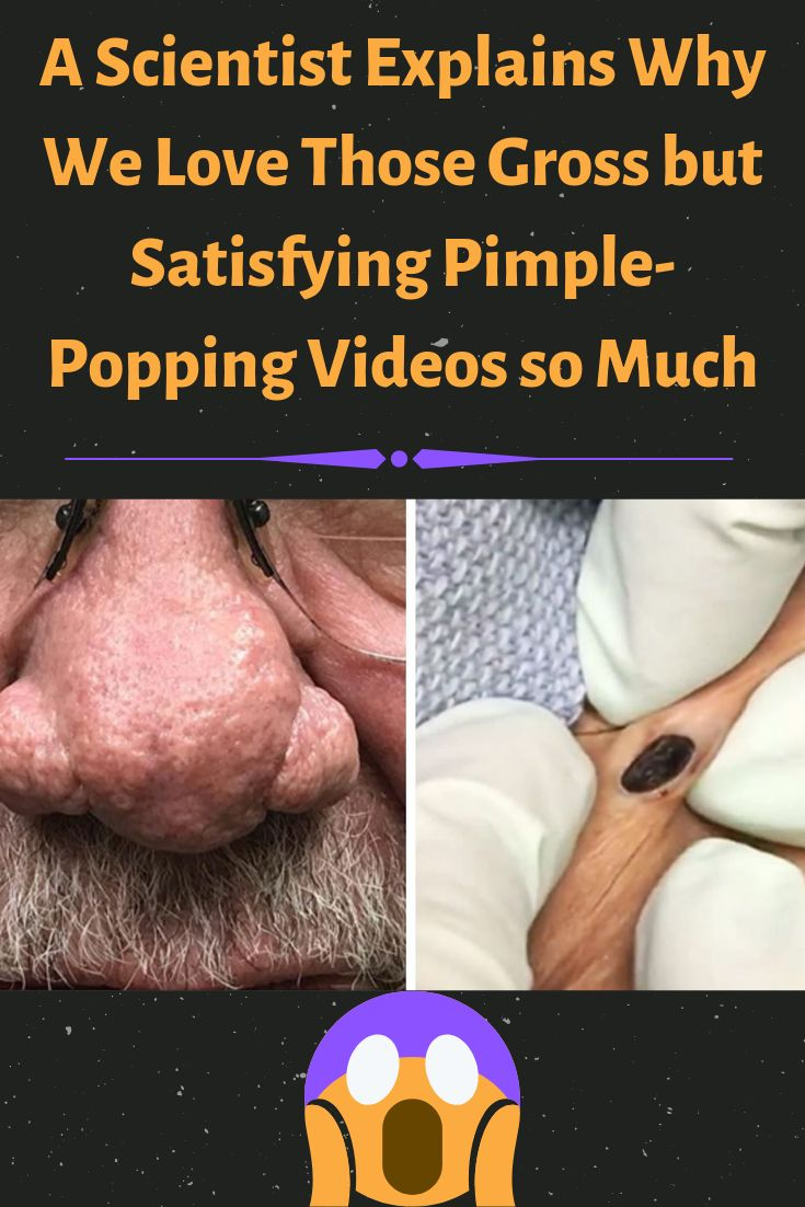 🤢 Satisfying Pimple Popping & Blackheads Removing 2019 Compilation