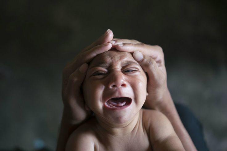 """Bebekte Kan Uyuşmazlığı Sorunu Tıptaki adı """"Rhesus hastalığı"""" olan kan uyuşmazlığı, önleyici tekniklerin geliştirilmesi sayesinde, günümüzde büyük ölçüde azalmıştır. Kan grupları Rh- (Rhesus negatif) olan annelerin ikinci ve daha sonraki bebekleri, babalarının Rh+ (Rhesus pozitif) olması durumunda kan uyuşmazlığı tehlikesiyle karşı karşıyadırlar. Bebeklerde Kan Uyuşmazlığı Belirtileri Kan uyuşmazlığında, bebeğin kan grubu babasınınki gibi Rh+'se, kan …"""