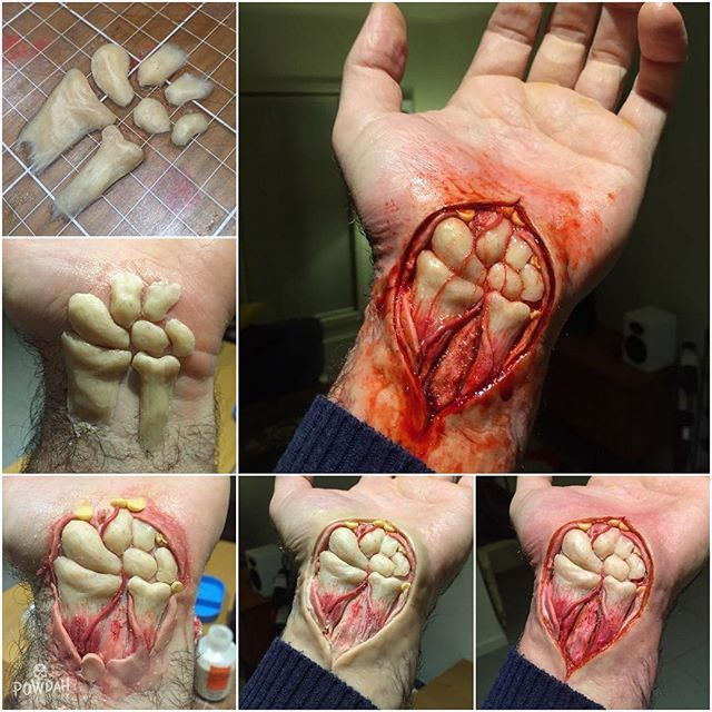 Making of the surgical incision of the wrist. The bones were sculpted from bees…