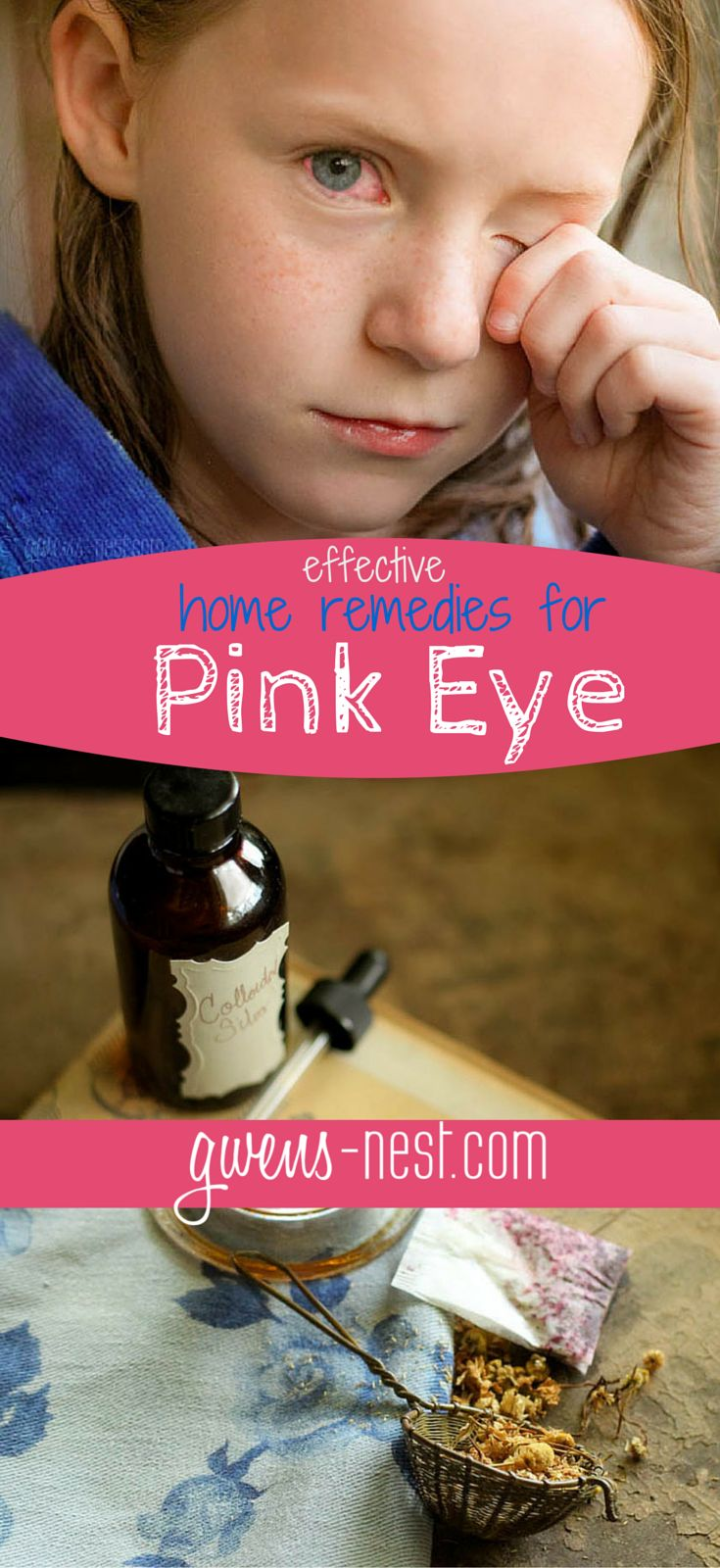 Home Remedy For Pink Eye  Pinkeye Remedies, Pink Eye Home -7578