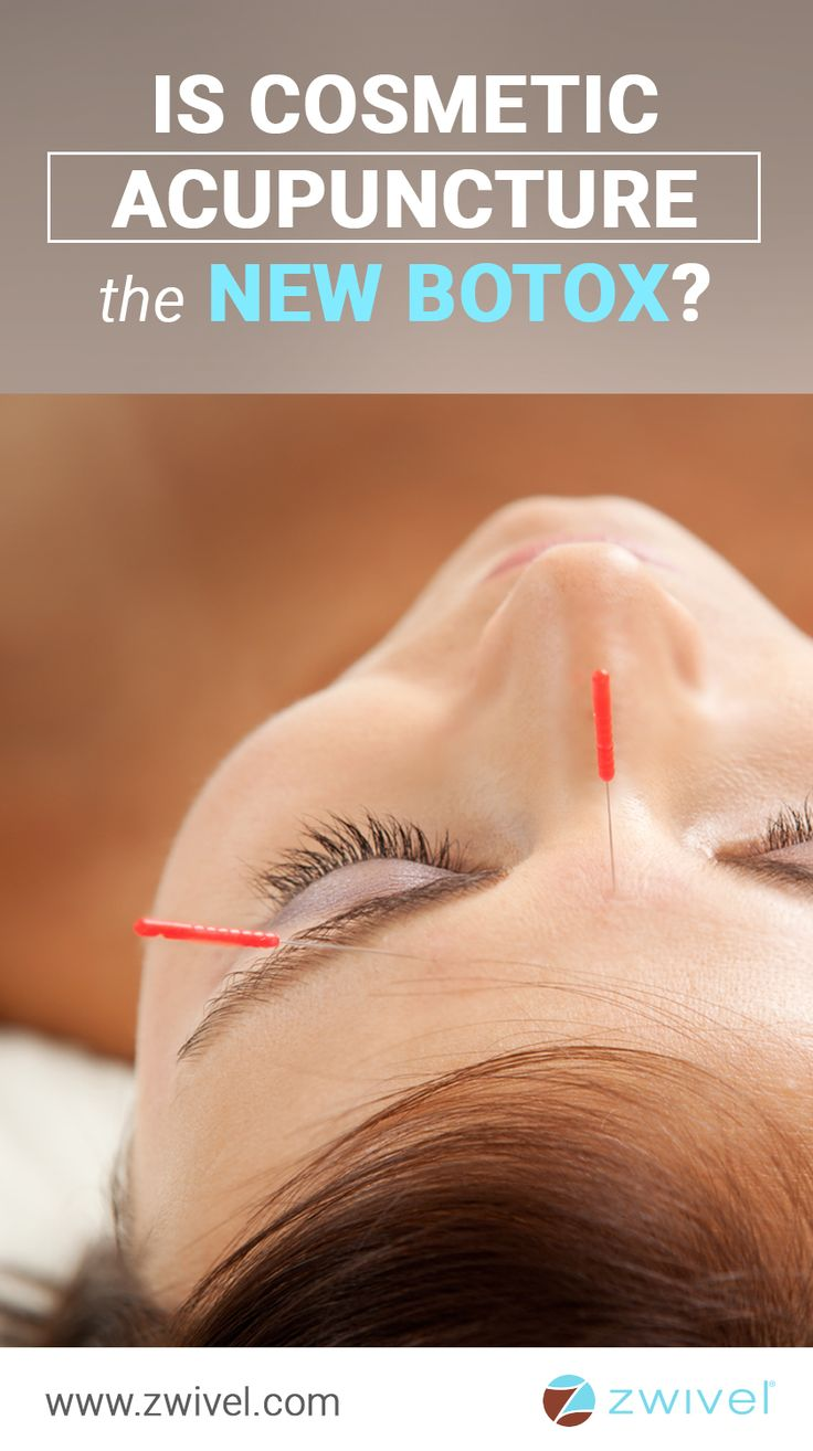 A-list celebrities like Gwyneth Paltrow, Angelina Jolie, Sean Connery and Madonna all swear by what is being described as a holistic alternative to Botox, claiming cosmetic acupuncture helps them look younger while boosting their health and well-being.