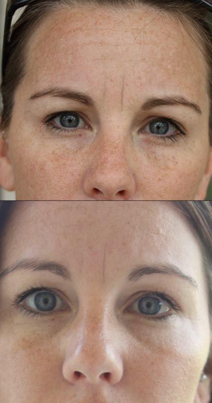 10 days with Luminesce Cellular Rejuvenation Serum