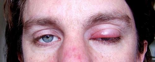 itchy skin rash
