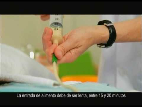 9 - Alimentación por sonda nasogástrica