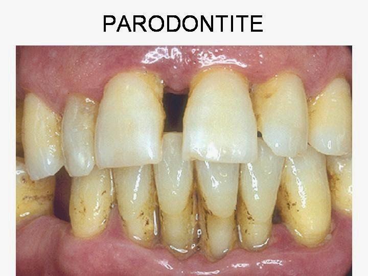 """Centro Dentale Zagabria: Chi non sa cosa sia la """"PARODONTITE"""" (piorrea) ? Piorrea = Parodontite"""