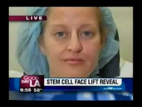 Dr Nathan Newman Anti Aging Stem Cell Face lift On Good Morning LA http://skincarebusiness.co/