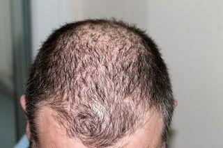 Wegen deutlicher Geheimratsecken empfinden sich zahlreiche Männer als unansehnlich und hätten gern volleren Haarwuchs. Bei einer Eigenhaarverpflanzung in der Türkei wird man von qualifizierten Fachärzten mit zeitgerechten Methoden betreut.