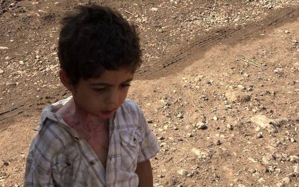 Dramat syryjskiego chłopca Azema | Pomagam.pl