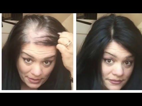 UNIWIGS 5x5 human hair topper Conceal Thinning hair in a snap! - YouTube
