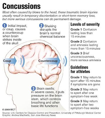 A new study suggests there may be a starting point at which blows to the head or other head trauma suffered in combat sports start to affect memory and thinking abilities and can lead to chronic traumatic encephalopathy, or CTE, in the brain.
