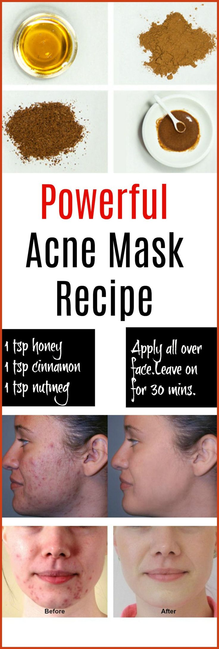 Homemade Acne Treatment - Homemade Acne Remedies - Discover the Top 6 Acne Treatments You Can Make at Home >>> Check out this great article. #AcneTips http://beautifulclearskin.net/category/no-more-acne/