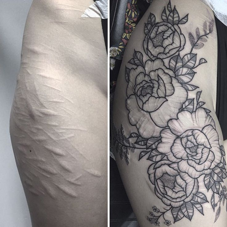 Cover Up Her Self-Harm Scars