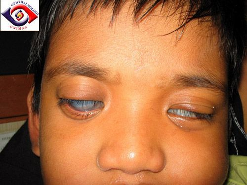how to get rid of glaucoma