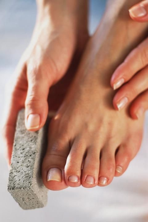 how to get rid of corns without pumice stone