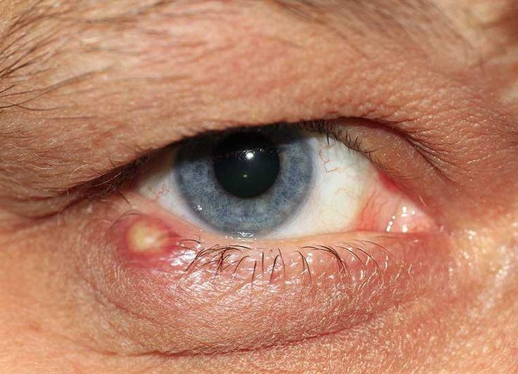 ORZAIOLO: infezione focale acuta causata da batteri piogeni (in genere stafilococchi) o ascesso della palpebrs; può essere esterno ( più freq)  o interno. È causato dall'ostruzione di un follicolo ciliare e delle ghiandole di Zeis o di Moll ad esso annesse, a cui consegue l'infezione. L'ostruz del follicolo ciliare può verificarsi in corso di blefarite. L'orzaiolo interno è una condizione molto rara e deriva dall'infezione di una ghiandola di Meibomio. A volte l'orzaiolo si associa a…