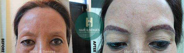 #Eyebrow_Hair_Transplant   Eyebrows are important facial features owing to its position on the face. As eyebrow hair loss is not conceived as natural hair loss, so it is not considered cosmetically and socially acceptable.  Visit http://hairnsenses.co.in/ for FREE CONSULTATION and Offers on Hair Transplant