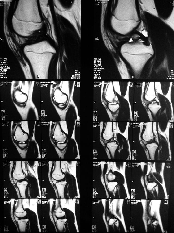 Resonancia magnética de la rodilla, sección sagital: -Hueso compacto y esponjoso. -Cartílago de crecimiento. -Meniscos y ligamentos.