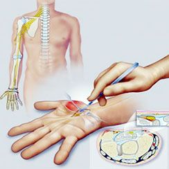 Ενημερωθείτε για τη χειρουργική άκρας χειρός στη Θεσσαλονίκη και την αντιμετώπιση χρόνιων πόνων στο χέρι. Ρωτήστε τους έμπειρους πλαστικούς χειρουργούς μας.
