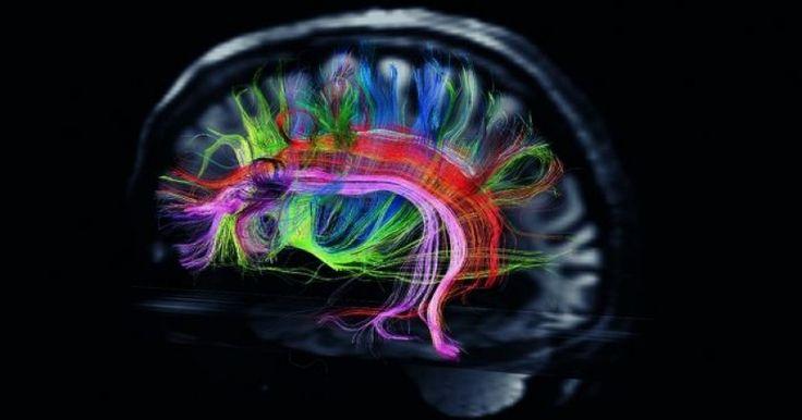 Neurociencia concluye que estatus económico influye en el desarrollo estructural del cerebro
