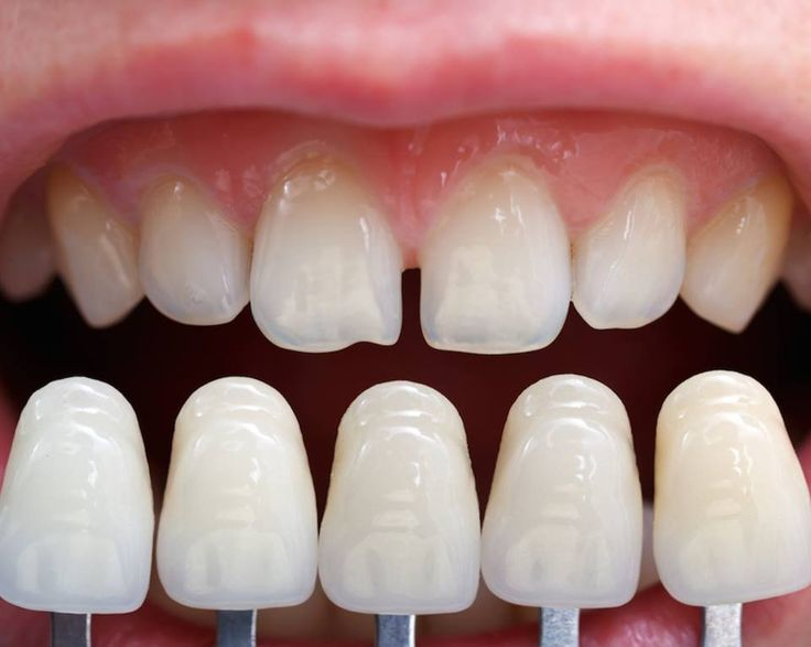 """A dental implant is an artificial tooth """"root"""" placed in your mouth to support a dental prosthesis such as a crown, denture or bridge. It is made from titanium alloy and it fuses around the jawbone serving as a root for the missing tooth. This is by far the best – if not the only long-term option for tooth replacement.  http://www.shalby.org/blog/dental-implants-beginning-of-a-new-era-in-cosmetics-dentistry/"""