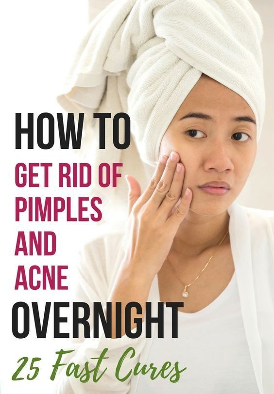How To Get Rid Of Pimples And Acne Overnight