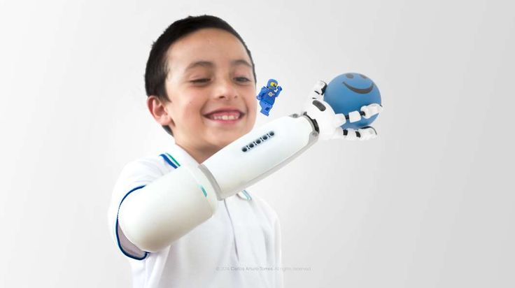 After a fair bit of tinkering, Torres developed a functioning prototype of a prosthetic that lets kid use their imagination to build their own arm  http://www.fact.co.uk/projects/build-your-own-tools-for-sharing