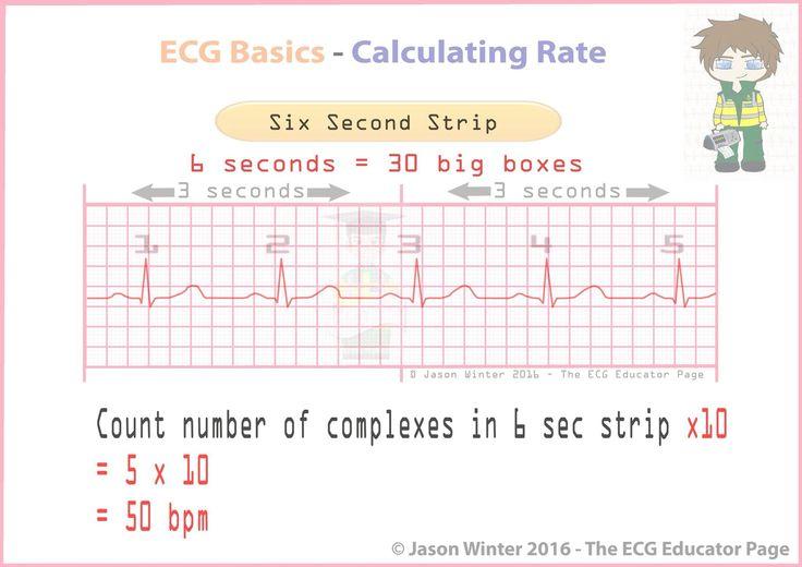 Confirm. heart rate on ekg strip