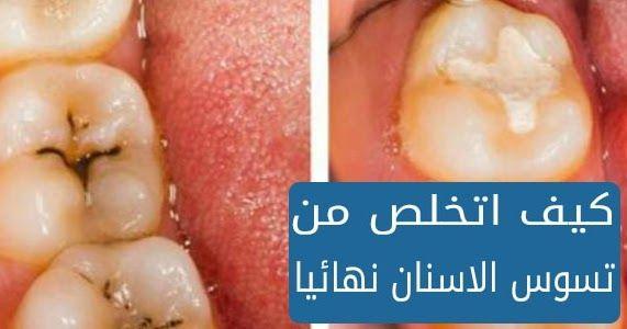 تسوس الأسنان هي ثقوب صغيرة تحدث في الاسنان يحدث هذا بسبب نقص نظافة الأسنان وتراكم البكتيريا يمكن أن يكون أيضا بسبب نقص المعادن Gummy Candy Gummies Peach Rings