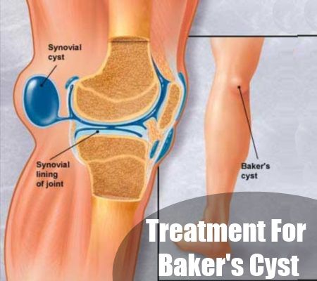 Treating Baker's Cyst