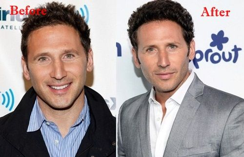 Mark Feuerstein Plastic Surgery Before and After