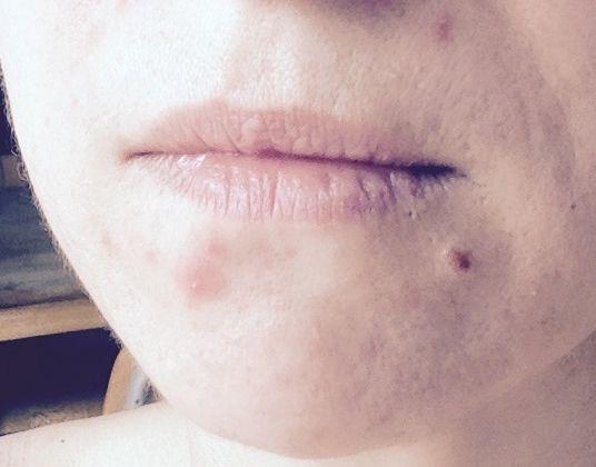 Depuis longtemps, je subis des poussées d'acné légère : en effet, j'ai quelques imperfections localisées sur le menton et sur le haut du dos.  Rien de très grave puisque j'arrive à camoufler le tout par du maquillage et à maîtriser les poussées par une routine adaptée.  Pourtant, avec l'arrivée de l'été, j'ai aussi envie de mettre des vêtements décolletés et d'alléger ma routine base-fond de teint-poudre!  J'ai testé AcnEase ...