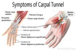 Carpal Tunnel: Symptom, Causes, Treatment & Exercise