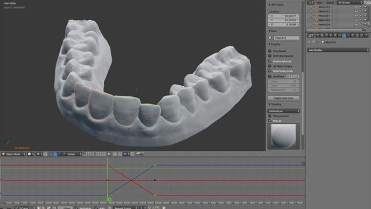 L'apparecchio per i denti? Me lo faccio da solo con la stampante 3D - Faq Drone Italy