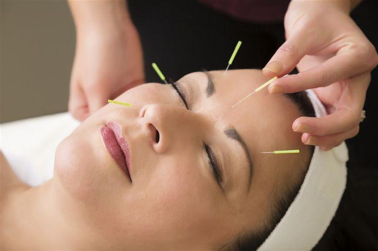 Çin Akupunktur ile Şişmanlığın Tedavisi ?  #Akupunktur