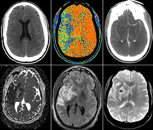 Diagnostic Radiology Residency, Neuroradiology
