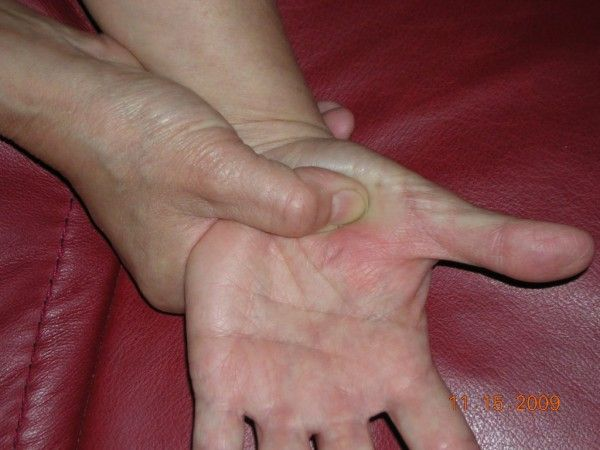 Sinus Relief and Lymphatic Drainage - Hand Reflexology Tip