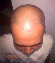 Tampil Percaya Diri dengan Rambut Sehat dan Bebas Botak