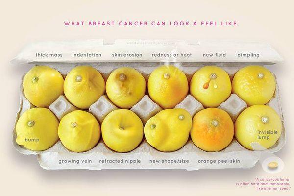 """#健康 #乳がん #発見方法 #お役立ち (Via: 乳がんになるとどうなるのか「レモン」で示したイラストが一目瞭然とシェア数4万件を超える ) """"上段の写真左から、厚みのあるかたまり、ギザギザした歪み、皮膚のびらん、赤味と熱、液体が出る、えくぼの様な凹み。 続いて下段左から、こぶ、血管が浮き出る、乳首の凹み、形や大きさの変化、皮膚がオレンジの皮の様になる、目に見えないしこり…と、様々な乳がんの症状がレモンを用いて表現されている。 """" ほぉ。色々種類があるのね。"""
