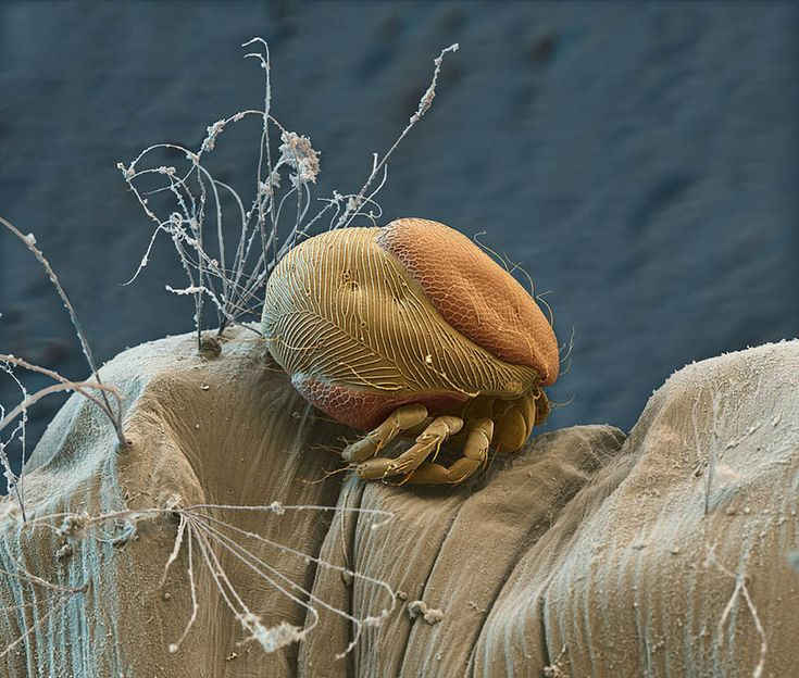 Parasitic Mite on Mosquito Larva  Captured by Nicole Ottawa with electron microscope. Magnification: 200x.