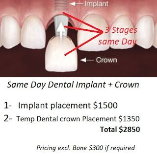 What is a Same Day Dental Implant? What happens if you lose your tooth in an sports injury or fall? what is the quickest way for a tooth replacement that is permanent? Can I have a DEntal Implant crown on the same day as the Implant? What are the risks associated and will the dentist bear the risk or myself? How to get all the warranties and carry no risks in Perth West Australia