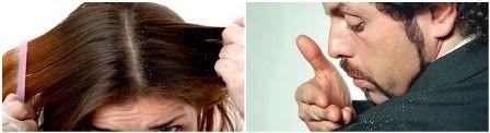 10 Penyebab Ketombe Tidak Hilang Pada Rambut | Perawatan Rambut
